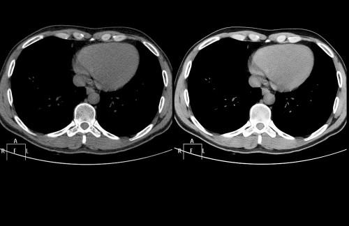 Sapheneia CT Uro Philips_Urinvagar 001