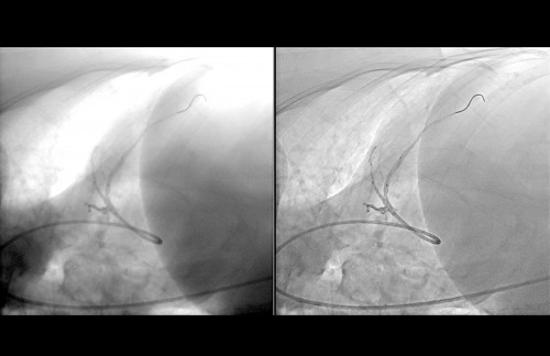 Sapheneia Flouro Cardiac 4