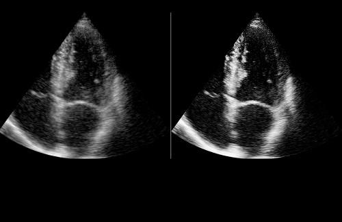 Ultrasound 4