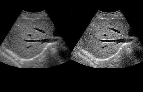Ultrasound Abdomen 2