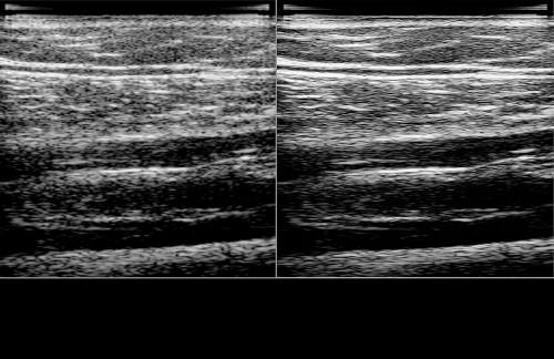 Ultrasound Calf