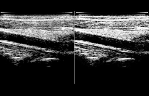 Ultrasound Carotid