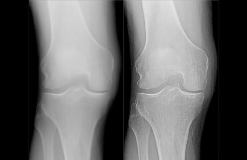 Sapheneia XR fld345c ENH Knee Frontal