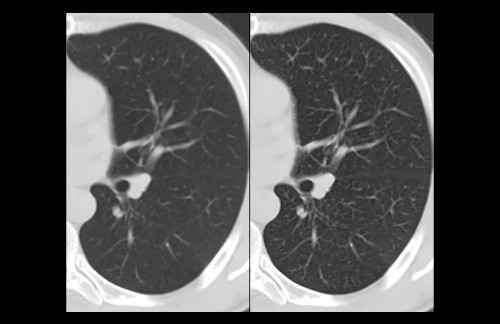Sapheneia CT Lung lobe